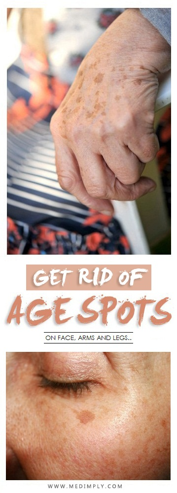 Different Ways to Remove Age Spots on Face, Hands & Legs Area